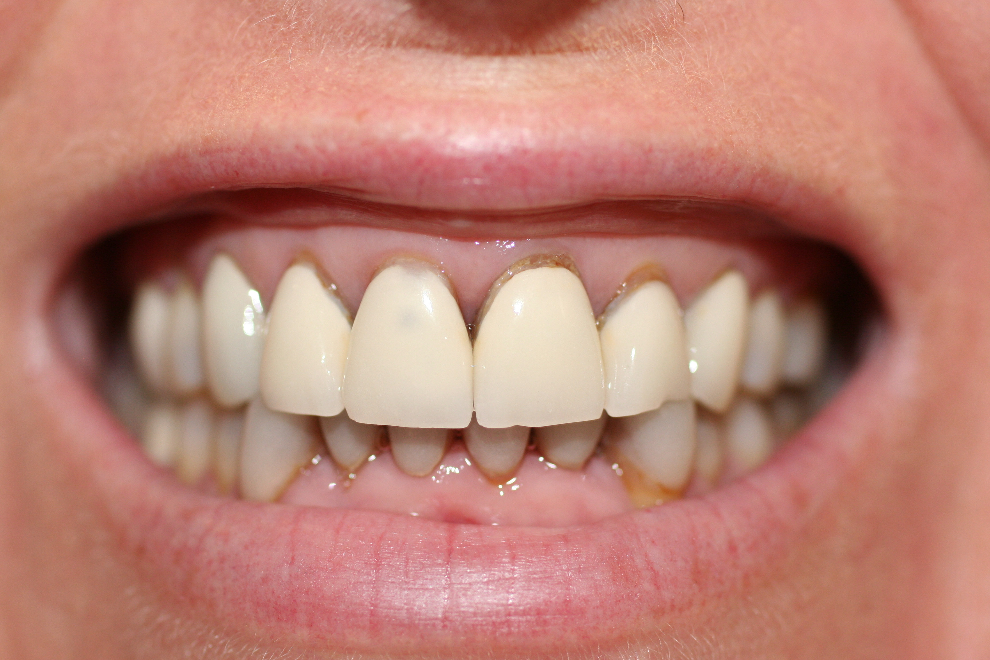 Veneers lumineers pearl cosmetic dds a1 old veneers solutioingenieria Image collections