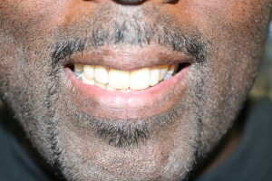 AFTER CROWNS AND PARTIAL DENTURE