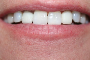 EXISTING OLD CROWNS WITH GUMS SHOWING