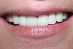 NEW CROWNS AND VENEERS WITH LASER GUM LIFTING