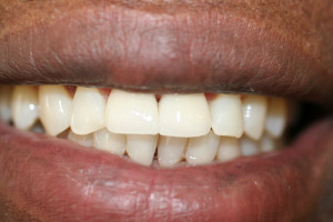 AFTER, CROWN PALCED TWO FRONT TEETH