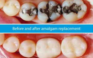 amalgam-to-composite-fillings
