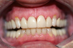 old crowns discolored teeth