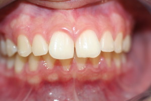 L before invisalign, space between teeth