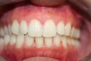 L1 after invisalign, closed space between teeth