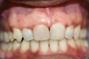 before veneer discolored tooth