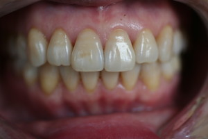 ZA32 after invisalign