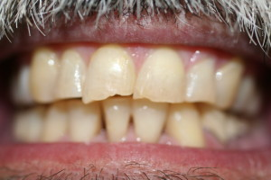 ZA39 after six month braces and before crowns, chipped and cracked teeth