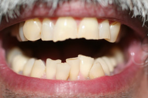 ZA39 before six month braces and crowns