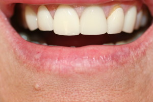 ZA42 Before old veneers