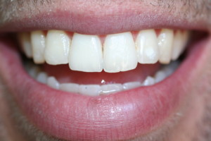 chase after invisalign and whitening 2