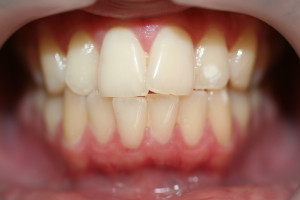 chase before invisalign and whitening 1 (2)