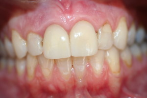 decayed and discolored crowns