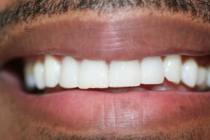 markees after veneers close space between teeth