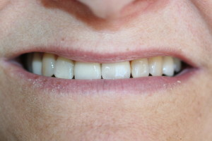 after implant front tooth