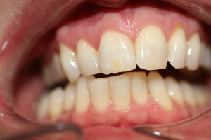 whit before invisalign and whitening(2)