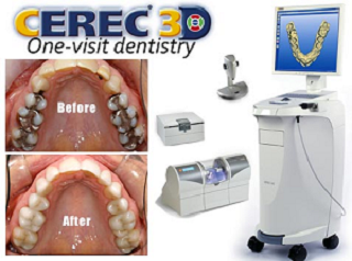 Crowns CEREC One-Visit Dentistry